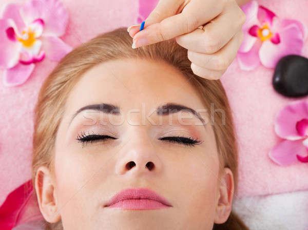 Kobieta akupunktura leczenie młoda kobieta kwiat Zdjęcia stock © AndreyPopov