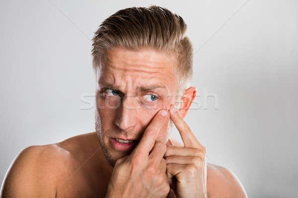 Man puistje gezicht grijs acne huid Stockfoto © AndreyPopov