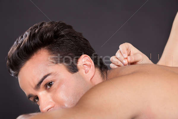Man Getting Acupuncture Treatment Stock photo © AndreyPopov