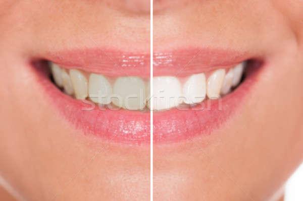 Kobieta zęby zdrowia piękna usta Zdjęcia stock © AndreyPopov