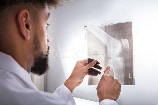 Lekarza kolano xray młodych Zdjęcia stock © AndreyPopov