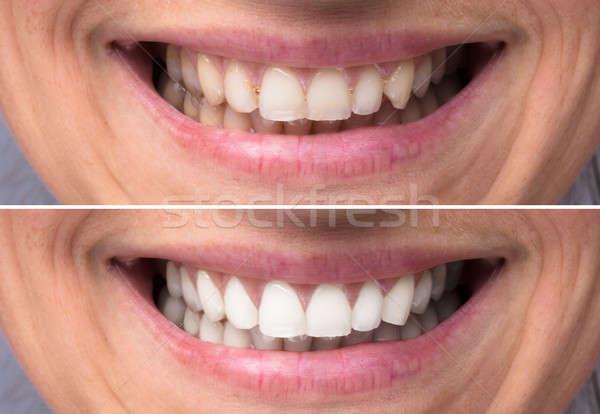 Személy fogak fehérítés közelkép részlet mutat Stock fotó © AndreyPopov