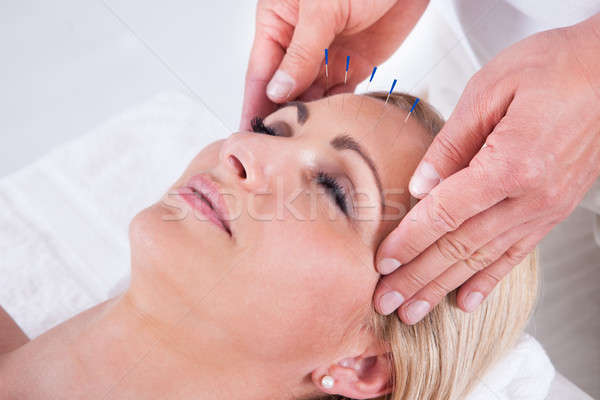 An Acupuncture Therapy In A Spa Center Stock photo © AndreyPopov