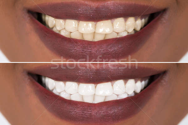 Woman Teeth Before And After Whitening Stock photo © AndreyPopov