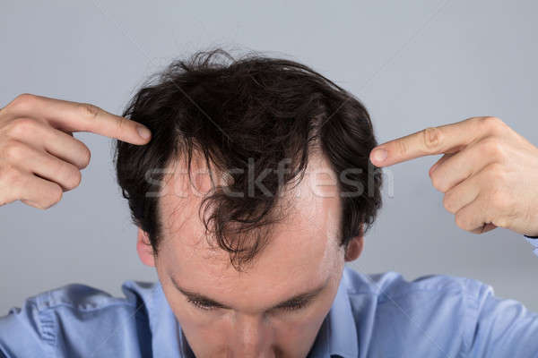 Man With Hair Loss Symptoms Stock photo © AndreyPopov