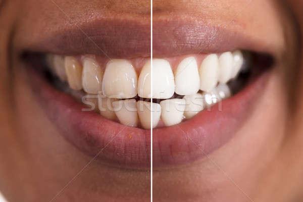 女性 歯 ホワイトニング クローズアップ 笑顔の女性 口 ストックフォト © AndreyPopov