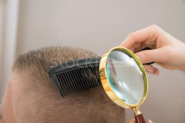 Dermatologist Looking Hair Through Magnifying Glass Stock photo © AndreyPopov