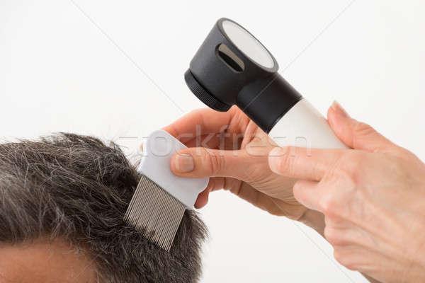 Persona examinar pelo primer plano mano hombre Foto stock © AndreyPopov