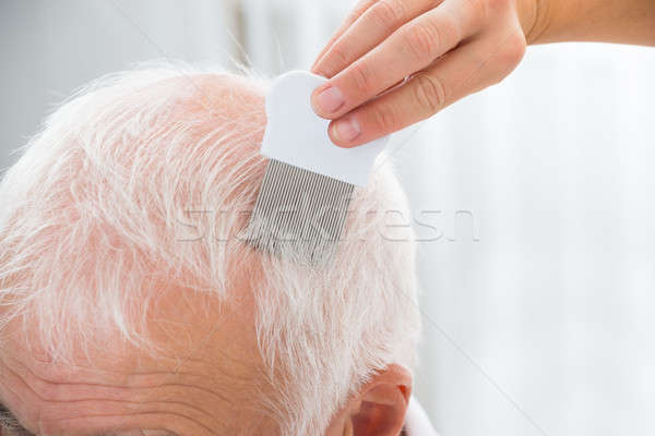 Doctor Doing Treatment On Patient's Hair With Comb Stock photo © AndreyPopov