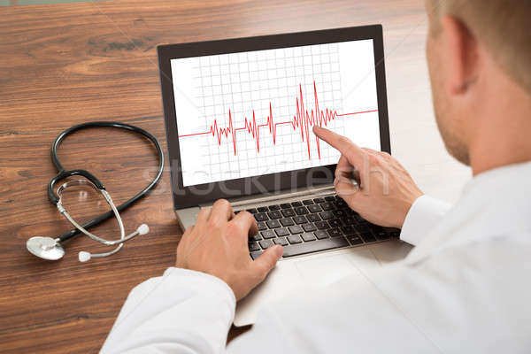 Doctor Looking At Heartbeat Cardiogram Stock photo © AndreyPopov