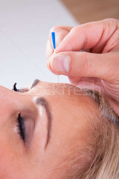 Woman Receiving An Acupuncture Therapy Stock photo © AndreyPopov
