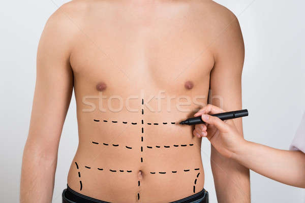 Person Hands Drawing Correction Lines On Abdomen Stock photo © AndreyPopov