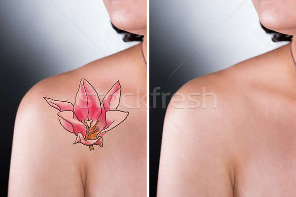Person Showing Laser Tattoo Removal Treatment On Shoulder Stock photo © AndreyPopov