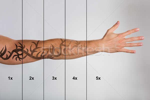 лазерного татуировка удаление стороны серый человека Сток-фото © AndreyPopov