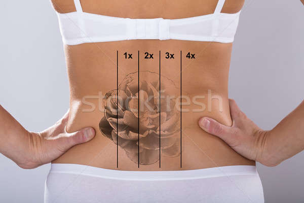 Laser Tattoo Removal On Woman's Hip Stock photo © AndreyPopov