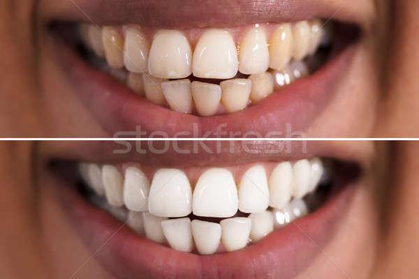 Nő fogak fehérítés közelkép mosolygó nő száj Stock fotó © AndreyPopov