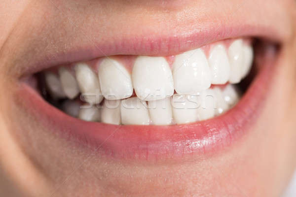 Woman Showing Healthy White Teeth Stock photo © AndreyPopov