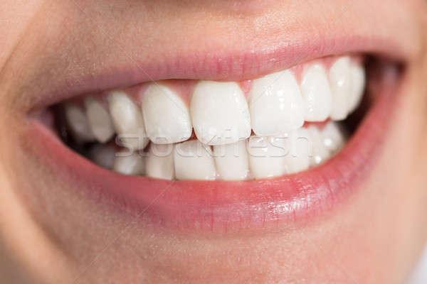 Vrouw tonen gezonde glimlachend Stockfoto © AndreyPopov