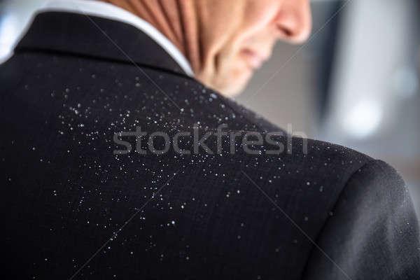 Dandruff Fallen On Businessperson's Shoulder Stock photo © AndreyPopov