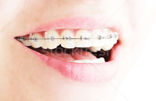Teeth with braces  Stock photo © Anna_Om