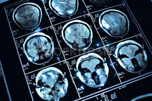 Filo cervello medici Xray scienza potere Foto d'archivio © arcoss