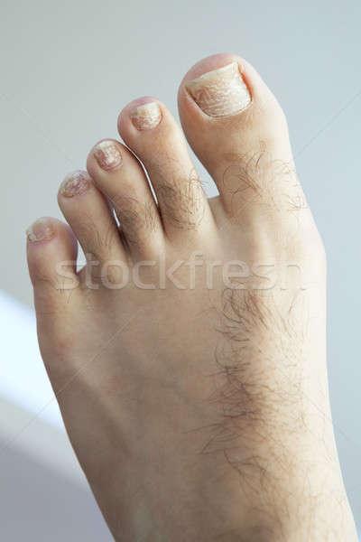 Repedt gomba közelkép emberi láb lábujjak Stock fotó © ArenaCreative