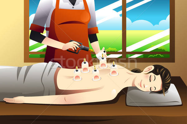 Cupping Therapy Stock photo © artisticco