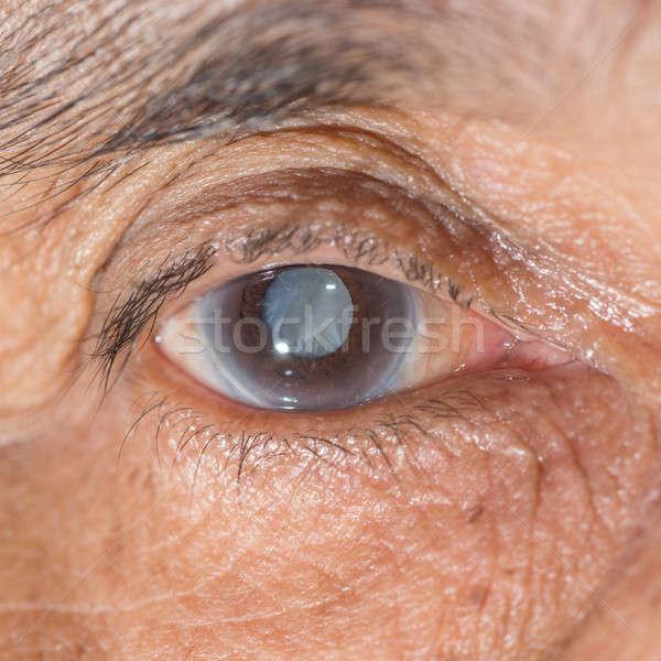 eye Stock photo © arztsamui