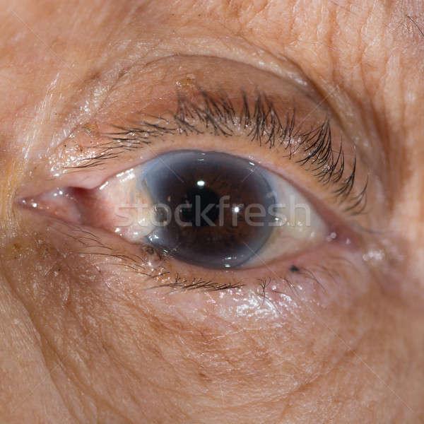 Examen de la vue oeil médicaux lampe Photo stock © arztsamui