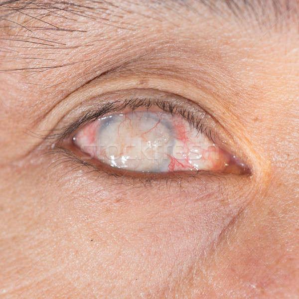 Oogonderzoek blinde oog onderzoek medische Stockfoto © arztsamui