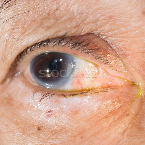 Examen de la vue post oeil médicaux Photo stock © arztsamui