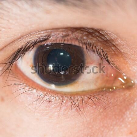 Göz muayenesi madeni yabancı vücut doğru Stok fotoğraf © arztsamui