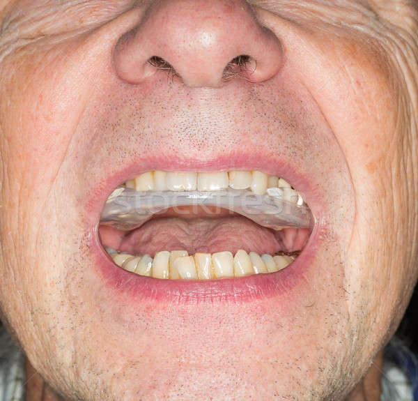 Close up of teeth guard in senior mouth Stock photo © backyardproductions