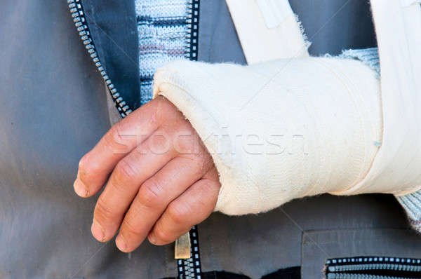 Broken hand Stock photo © badmanproduction