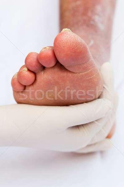 Ill foot Stock photo © barabasa