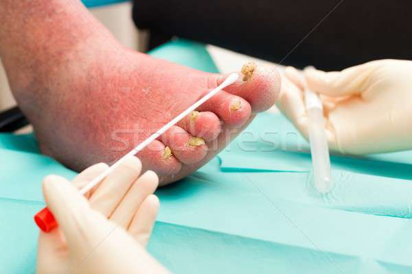 Dermatological Examination on Arteriosclerotical Leg With Nail F Stock photo © barabasa