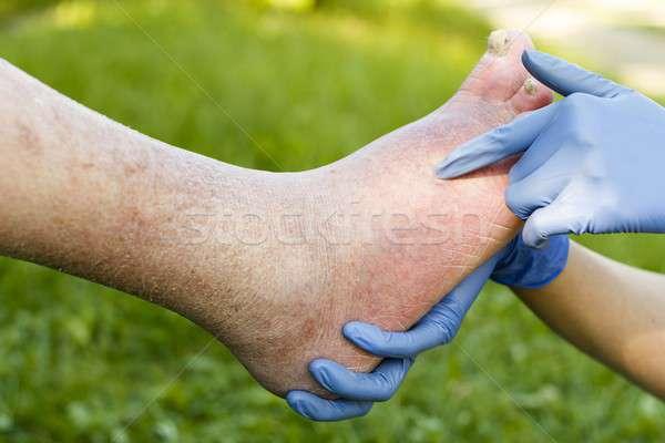 Arteriosclerotic Old Foot Stock photo © barabasa