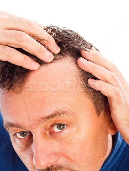 Сток-фото: волос · потеря · человека · тело