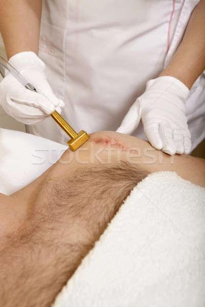 Rimozione mano medici pelle trattamento guanto Foto d'archivio © bartekwardziak