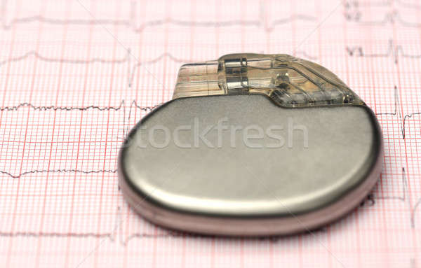 Pacemaker on electrocardiograph Stock photo © bdspn