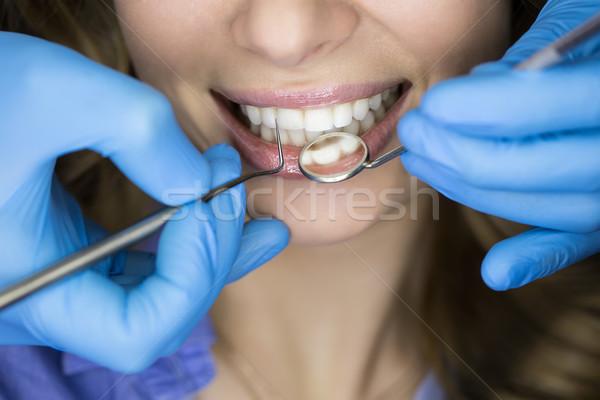 красивые зубы девиц фото у дантиста знаете животного год