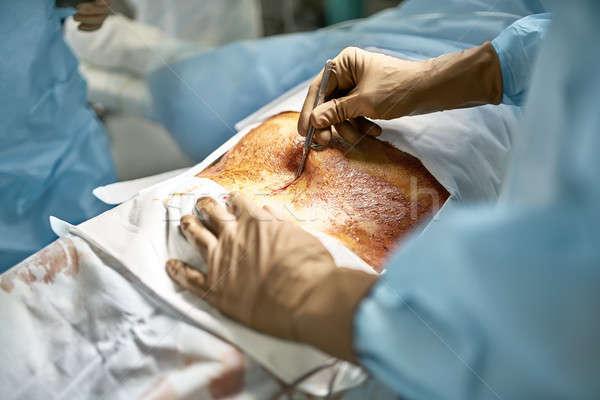 Brzuszny operacja proces chirurg skalpel Zdjęcia stock © bezikus