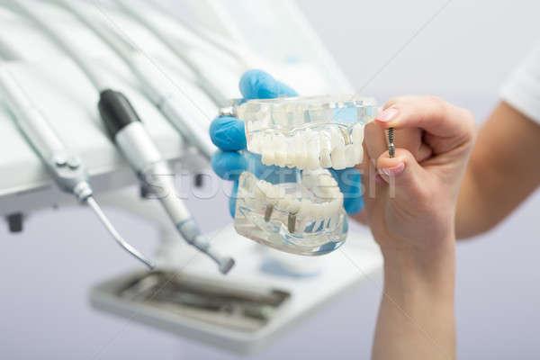 имплантат зубов модель стоматологических стороны синий Сток-фото © bezikus