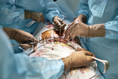 Laparoscopy operation process Stock photo © bezikus