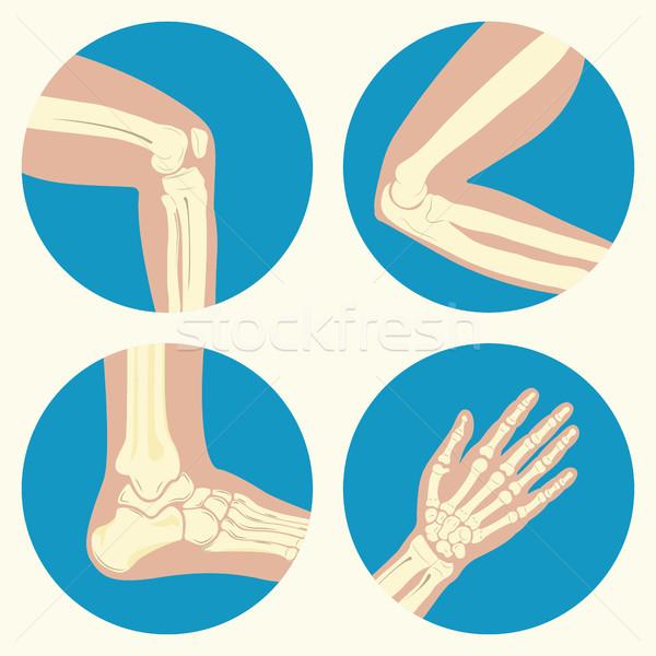 セット 人間 関節 膝 ジョイント 肘 ストックフォト © BoogieMan