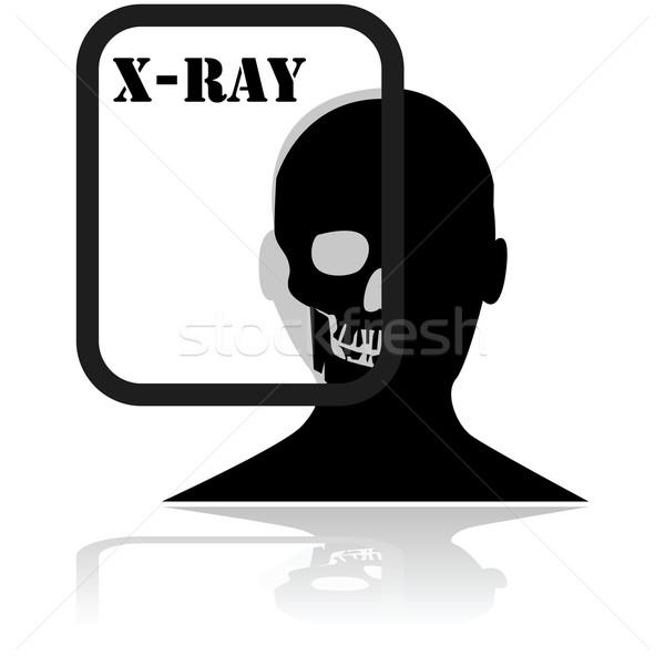 X線 アイコン 頭 プレート ストックフォト © bruno1998