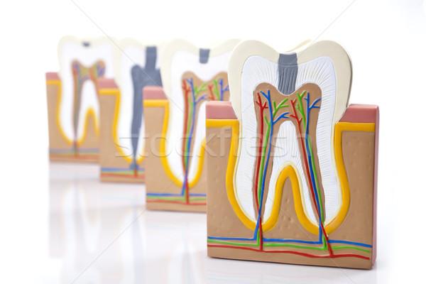 Diş hekimliği aletleri dişler bakım kontrol stüdyo ofis Stok fotoğraf © BrunoWeltmann