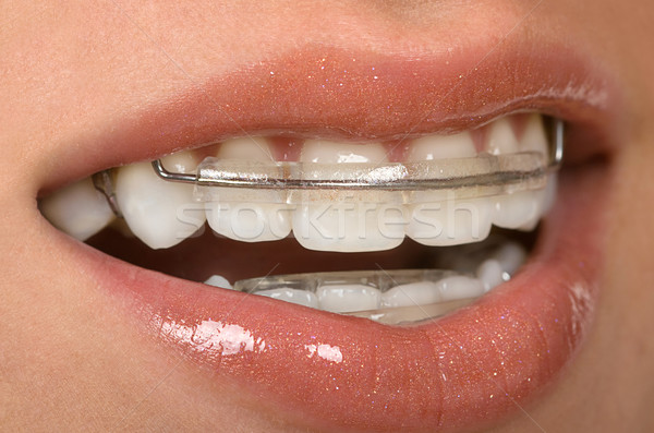 Dental Braces Stock photo © BVDC