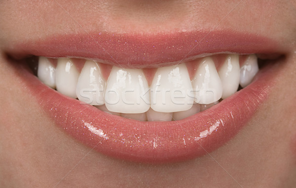 Dents saine Teen bouche heureux dentiste Photo stock © BVDC