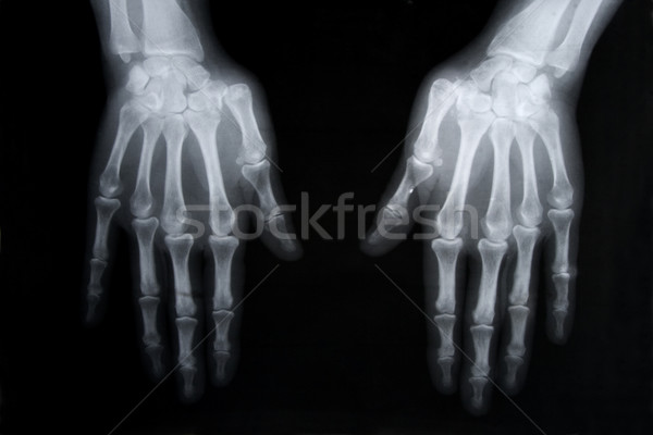 x-ray picture of human hands Stock photo © caimacanul